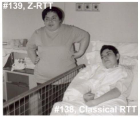 Benyam Kinde Gene Expression And Rett >> Rsrt Rett Syndrome Research Trust Blog